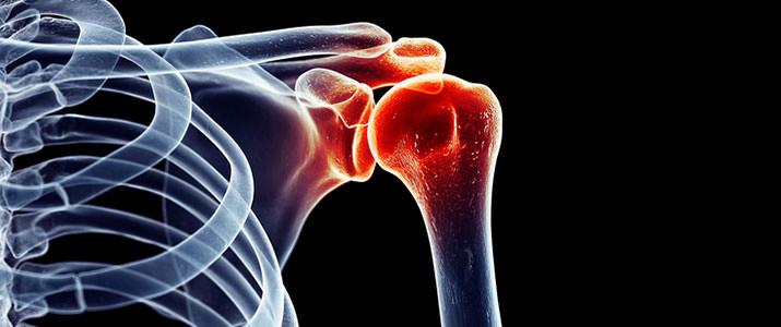 Röntgen Schulter